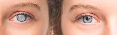 Traitement de la cataracte prix pas cher en Tunisie
