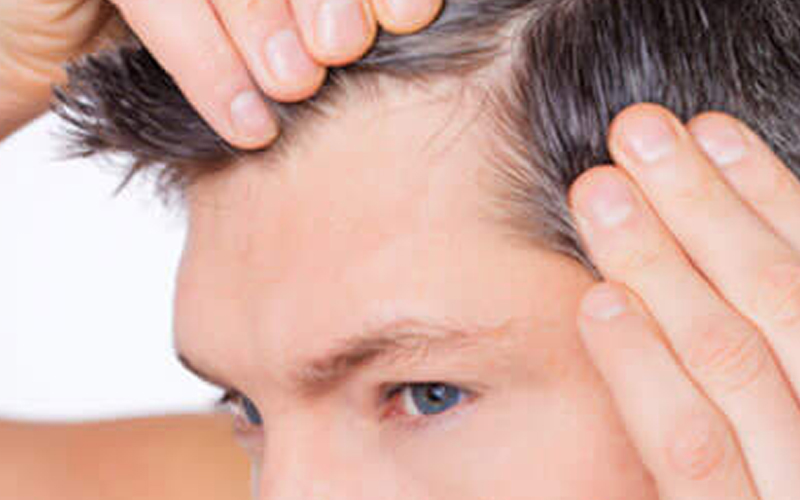 Greffe de cheveux en Tunisie prix pas cher