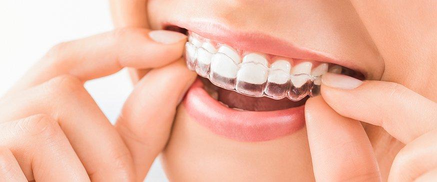Invisalign (appareil dentaire invisible) prix pas cher en Tunisie