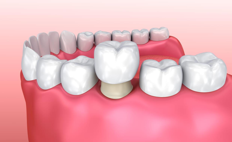 Couronne dentaire prix pas cher en Tunisie