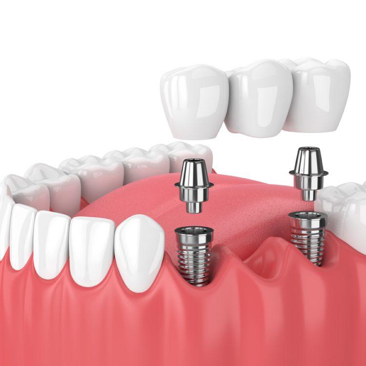 Implants dentaires prix pas cher en Tunisie